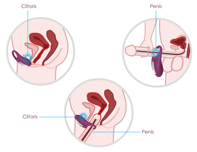 Winni possesses the ability to improve the sex life of both partners. It can prolong man's endurance and stimulate woman's pleasure at the same time. Winni can be used by woman as a clitoris stimulator. By limiting blood flow it will also enhance man's pleasure during masturbation.